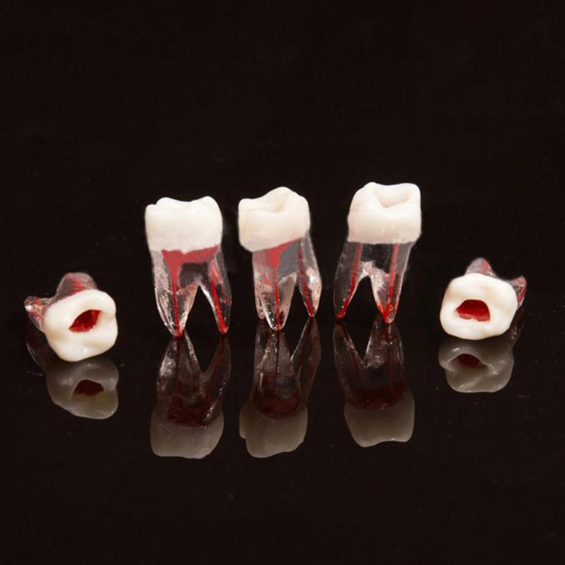1pc 1:1 Resin Dental Endodontic Tooth Model With Colored Root Canal And Pulp Model Dentist Tools For Student Study Practice
