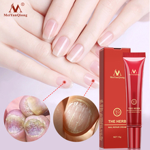 Essence-Gel Fungus-Removal Repair-Treatment Foot-Nails Nail-Care Paronychia Anti-Infection