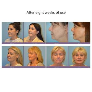 Image 4 - Facial Massager Face Lifting Microcurrent Device Skin Tightening Rejuvenation Roller vibrator Anti Wrinkle V Face skin care tool