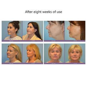 Image 4 - Masażer twarzy Lifting twarzy urządzenie mikroprądowe napinanie skóry odmładzanie Roller wibrator przeciw zmarszczkom V narzędzie do pielęgnacji skóry twarzy