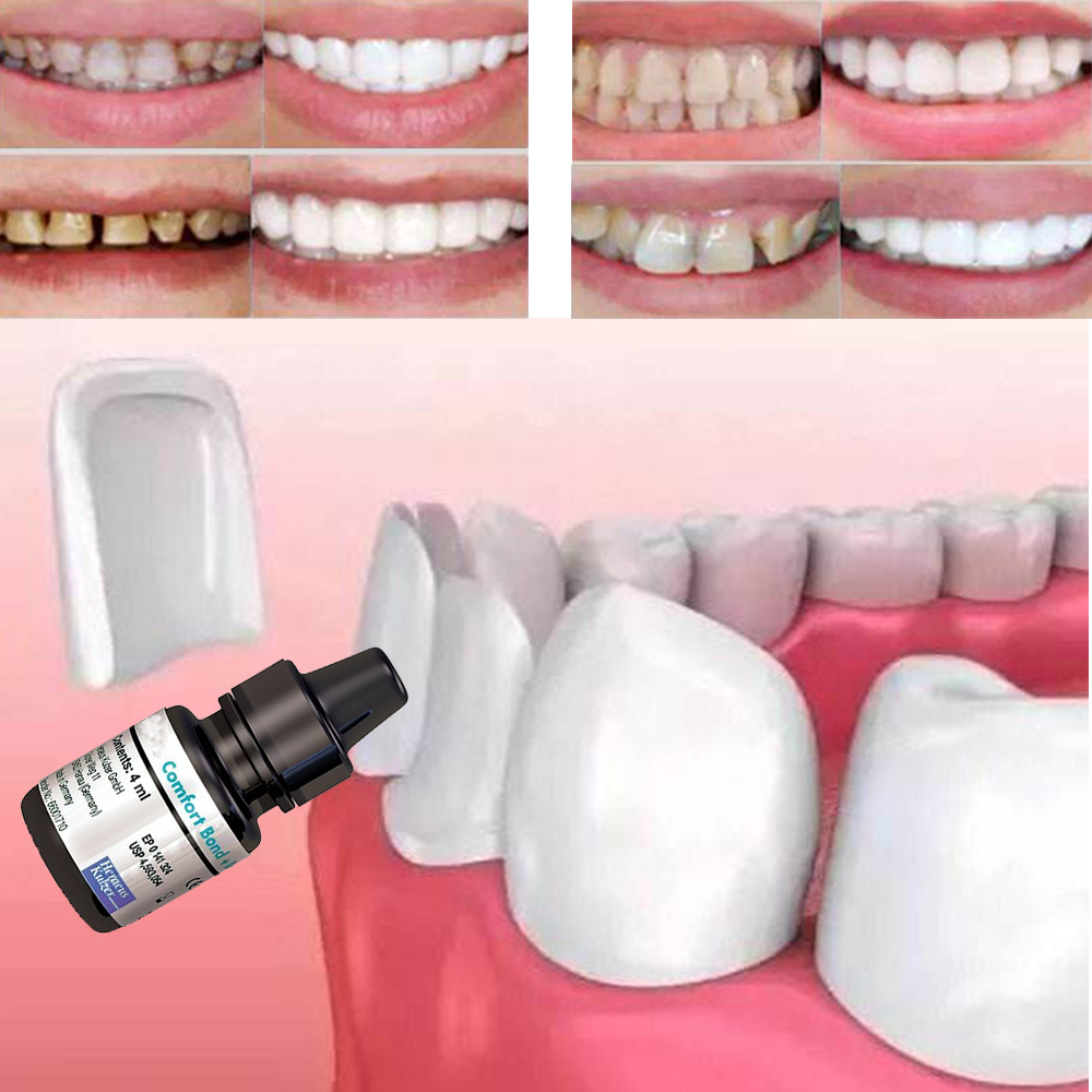 Tooth Veneer Quick Adhesive Dental Comfort Bond Desensitizer Equivalent Formula Teeth Whitening Products