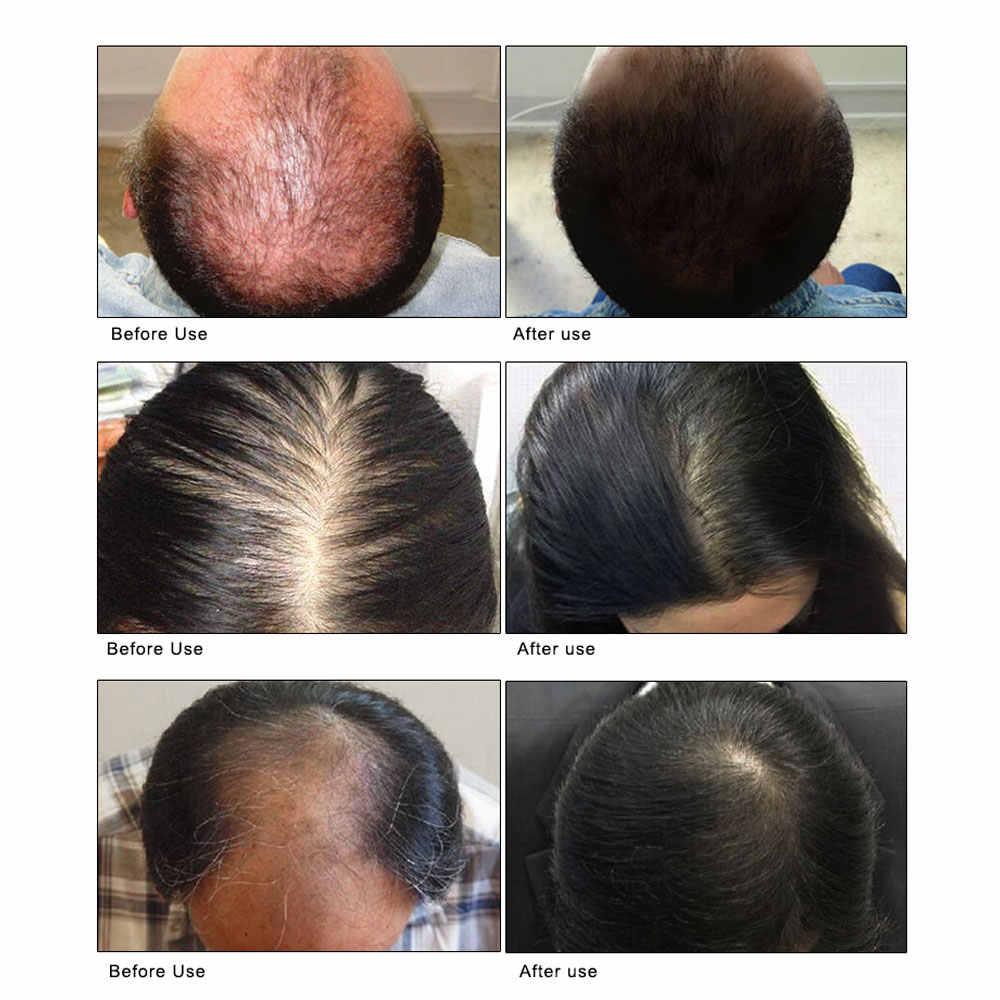 ARTISCARE, Spray de crecimiento para la pérdida de cabello, aceite para el cabello, tratamiento de queratina para evitar que el cabello promueva el crecimiento del cabello, nush el cuero cabelludo, cabello grueso