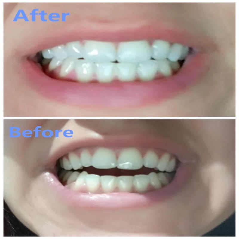 Professional 3ml 3 Tooth Whitener Syringe Mouth Trays Led Light