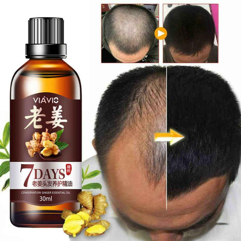 30ml ใหม่ ReGrow 7 วัน inger Essence Hairdressing Hair Care น้ำมันขนหน้ากากน้ำมันหอมระเหยแห้ง & เสียขนโภชนาการ