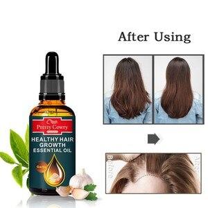 Hot 50ml Garlic Hair Growth Oil Anti-Hair Loss Hair Regrowth Herbal Essential Oil Hair Growth Care Products 2020