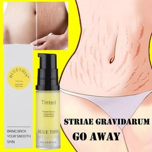 6ml Mild Stretch Marks Remover Cream Eliminate Pregnancy Scars Maternity Repair Anti Winkle Skin Firming Treatment TSLM1