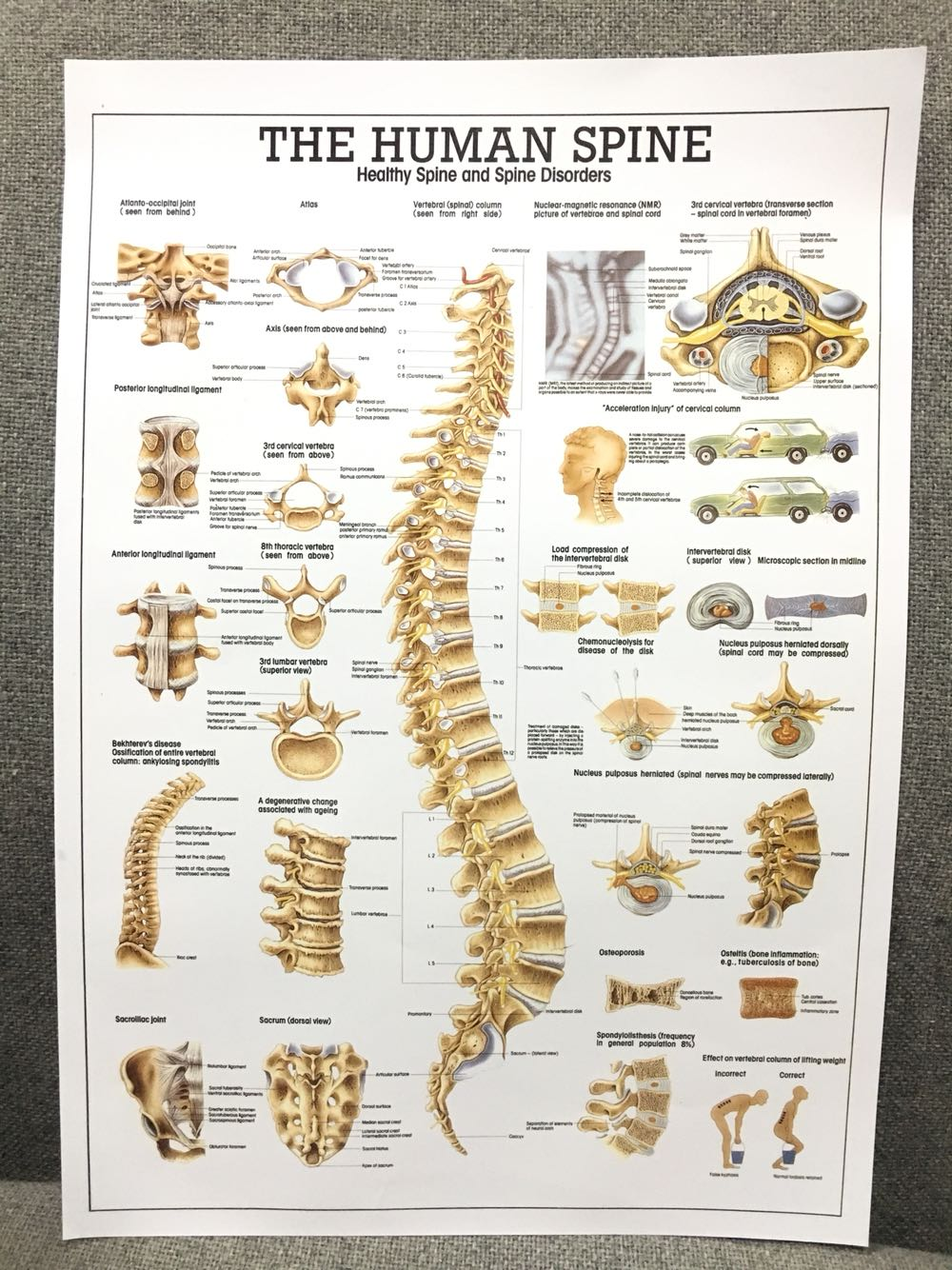 Human Spine Cervical Spine  Poster