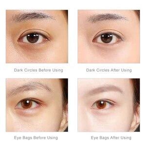 Image 3 - Nanotime Eyemagic Beauty Anti Wrinkle Miniอุปกรณ์นวดไฟฟ้าการสั่นสะเทือนใบหน้าMagic Stick Skin Care Beauty Tool