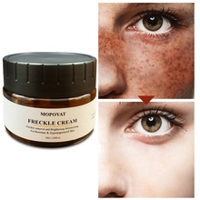 Facial Freckles Removal Cream Moisturizing Lighten Melanin Brighten Skin Color Face Whitening Cream