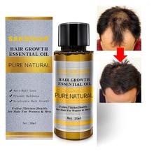 Orijinal otantik 100% saç bakımı saç büyüme uçucu yağlar özü saç dökülmesi sıvı sağlık güzellik yoğun saç büyüme serumu