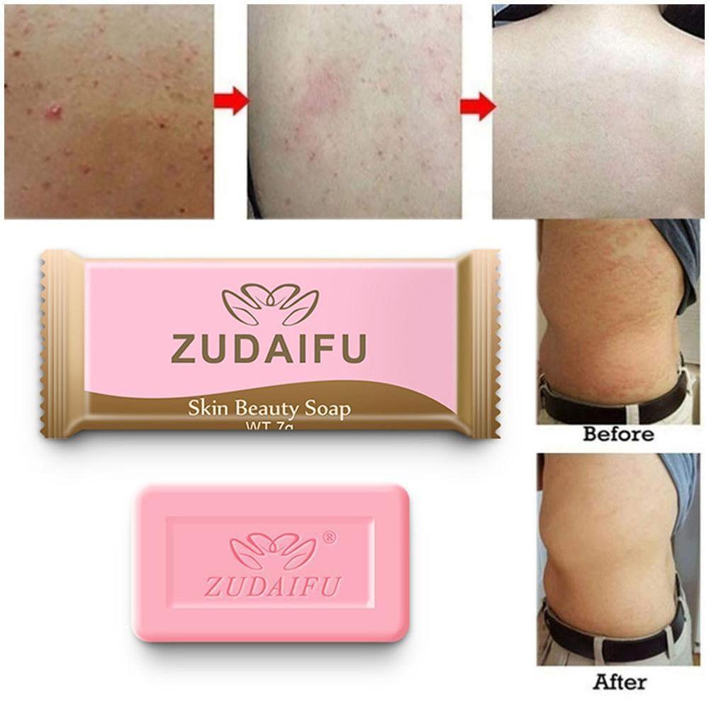 2PCS 7g Sulfur Soap Skin Conditions Acne Psoriasis Seborrhea Eczema Anti Fungus Bath Whitening Soap Shampoo Dropshipping  TSLM1