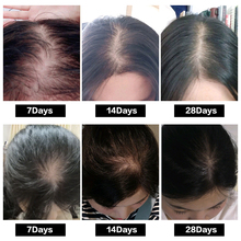 Hair Growth Treatment Oil