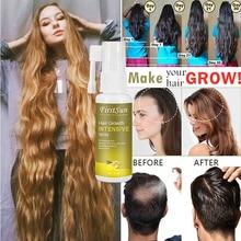 Эссенция для роста волос с имбирем, 30 мл, спрей для лечения выпадения волос, спрей для предотвращения выпадения волос, эссенция для роста вол...