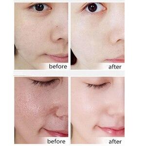 Image 3 - Hyaluronik asit yüz serumu cilt bakımı özü küçültmek gözenek nemlendirici onarım beyazlatma Anti aging kuru yüz kremi