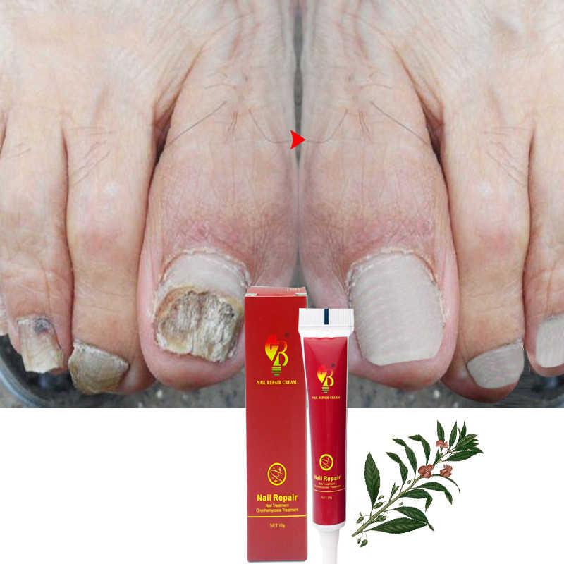 Traitement Anti-fongique onguent d'ongle Onychomycosis Paronychia Infection à base de plantes orteil doigt ongles santé ongles champignon traitement masse