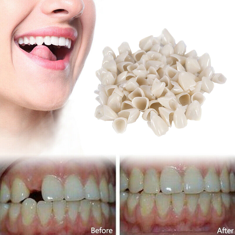 Newest Temporary Crowns Posteriors Anterior Molar Front/Back Resin Tooth Teeth Caps Dental