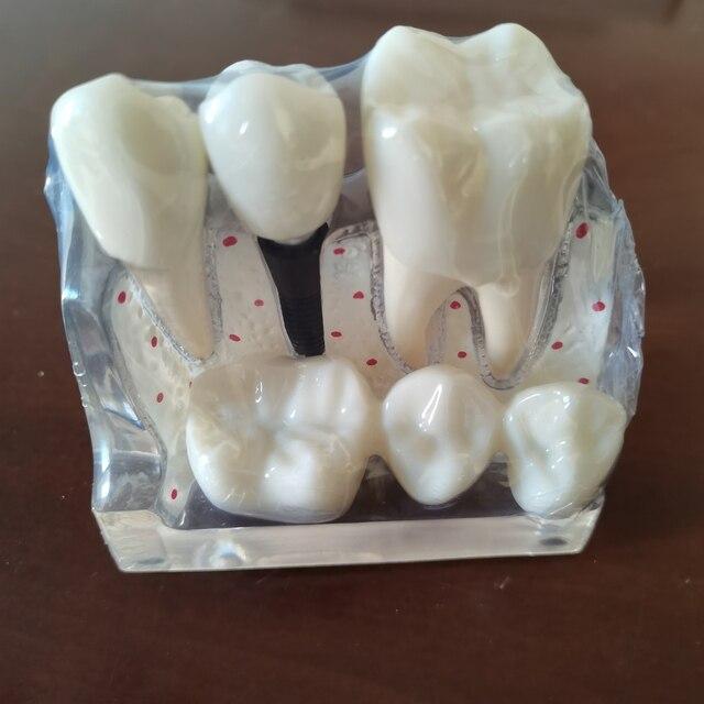 Removable Dental Teeth Implant Restoration Model Pathological Implant Nerve Model For Dental Disease Analysis Demonstration Tool