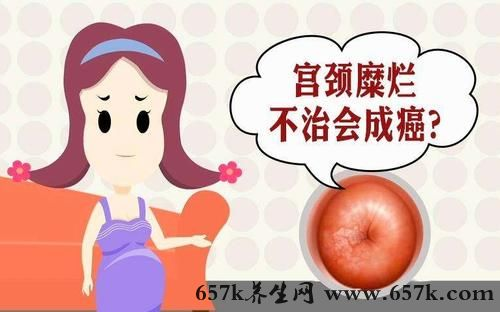 宫颈糜烂的原因 清洁过度小心会得这种疾病