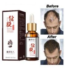 Saç bakımı saç büyüme uçucu yağlar özü büyümek saç sıvı saç dökülmesini önler sağlık güzellik yoğun saç büyüme serumu