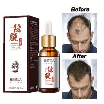 Hair Care Hair Growth Essential Oils Essence Grow Hair Fluid Prevent Hair Loss Health Care Beauty Dense Hair Growth Serum hair care center