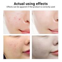 BREYLEE Acne Treatment Face Serum Anti Acne Pimple Scar Remover Moisturizing Oil-Control Whitening Shrinking Pores Essence 3