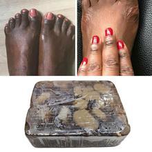 Натуральное 100% Африканское черное мыло, волшебное, против пятен, косметическое средство для ванны, лечение акне, мыло для кожи, уход за телом...