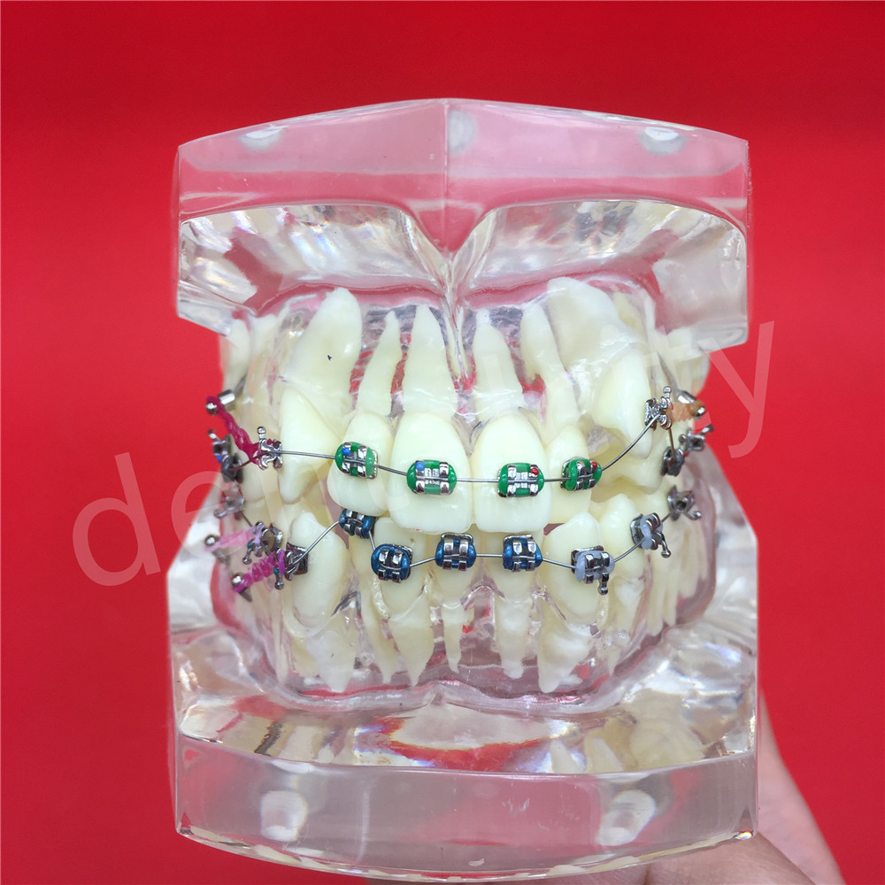 Dental Teeth Models Are Used For Teaching And Hospital Dentist Material Malocclusion Orthodontic Model