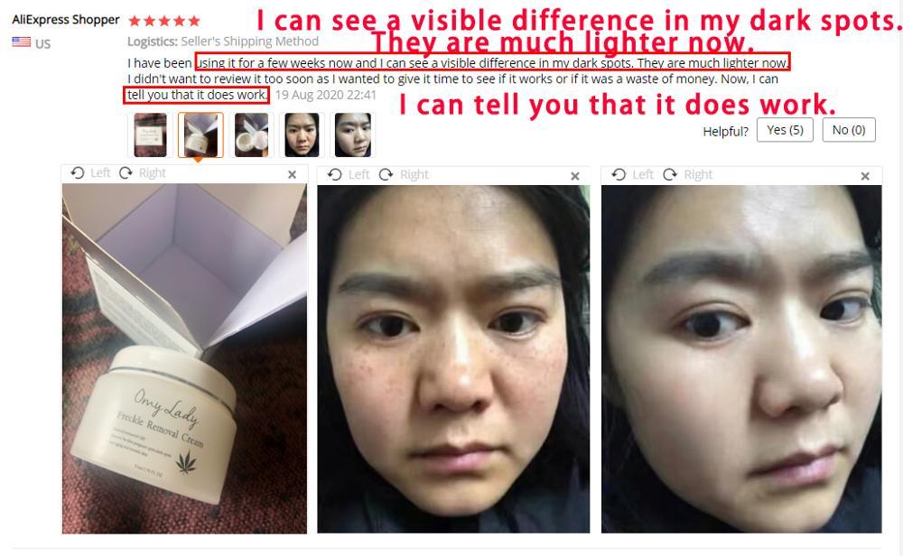 Freckle Removal Cream (2pcs) 3