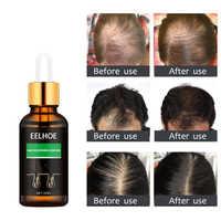 Esencia para el cuidado del cabello, esencia para el crecimiento del cabello, nutre la pérdida del cabello, repara el cabello denso, alisa el aceite esencial de jengibre frizz TSLM2