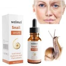 Weimei Snail Serum Moisturizing Hydrating Repair Pore Acne Serum Supplement
