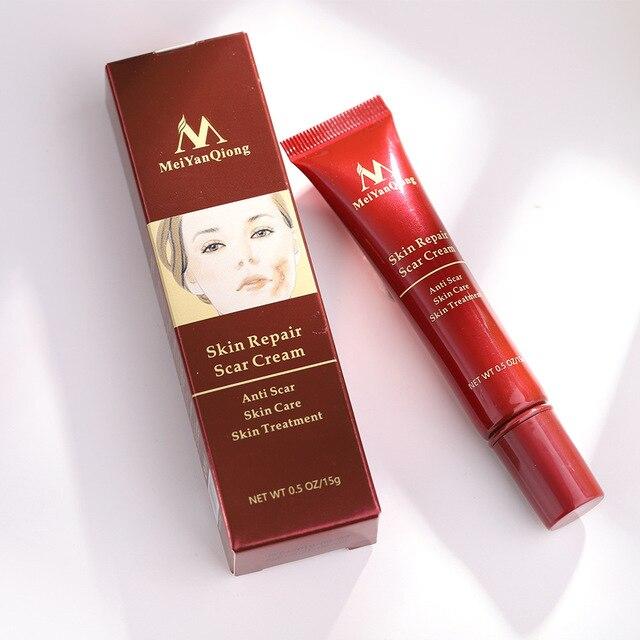 MeiYanQiong acné cicatrice enlèvement crème peau réparation visage crème acné taches acné traitement Anti cicatrice vergetures corps peau crème