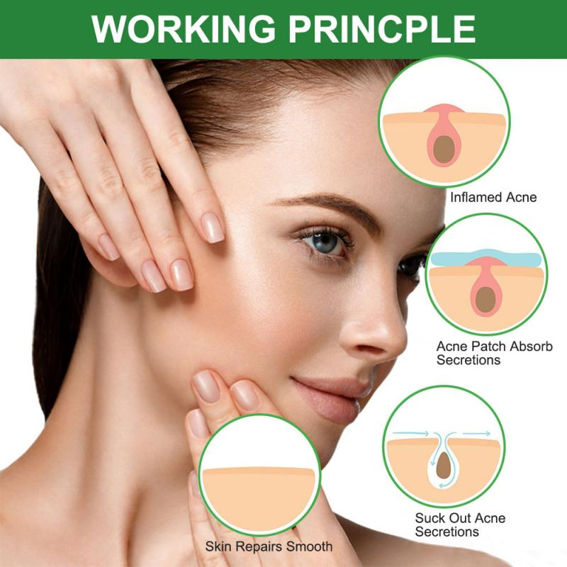 Fashion Acne Pimple Patch Daily Use Invisible Acne Stickers Blemish Treatment Acne Master Pimple Remover Beauty Tool Skin Care