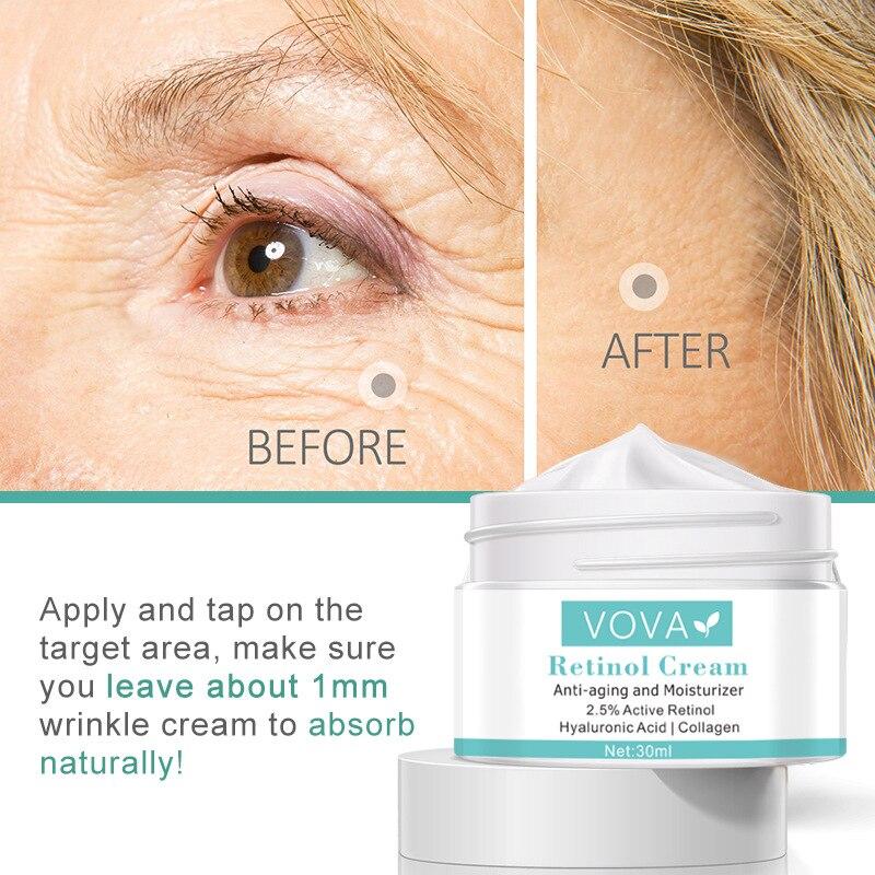 VOVA крем с ретинолом антивозрастной и увлажняющий 2.5% активный ретинол Гиалуроновая кислота коллагеновый крем для лица против морщин крем дл...