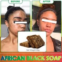Натуральное 100% Африканское черное мыло, Отбеливающее мыло, волшебные анти-тачки, Rebelles, красота, ванна, лечение тела, мыло от акне, уход за тел...