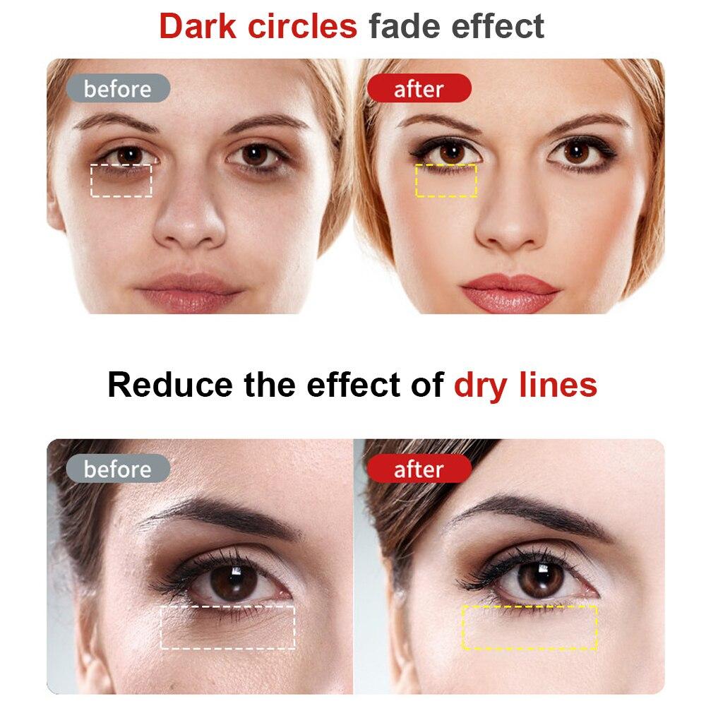 Anti-Ageing Wrinkle Eye Massager  3