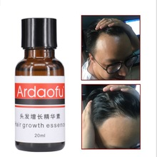 Essential Oil Hair Fast Growth Serum Essential Oil Anti Preventing Hair Lose Liquid Damaged Hair Rep