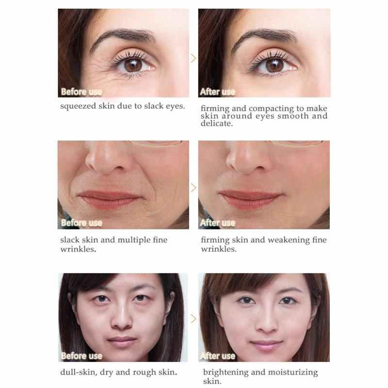 ARTISCARE المضادة للتجاعيد كريم وجه المعدنية الطين قناع الوجه تبييض كريم وجه مرطب العناية بالبشرة تنظيف ترطيب البثرة إزالة