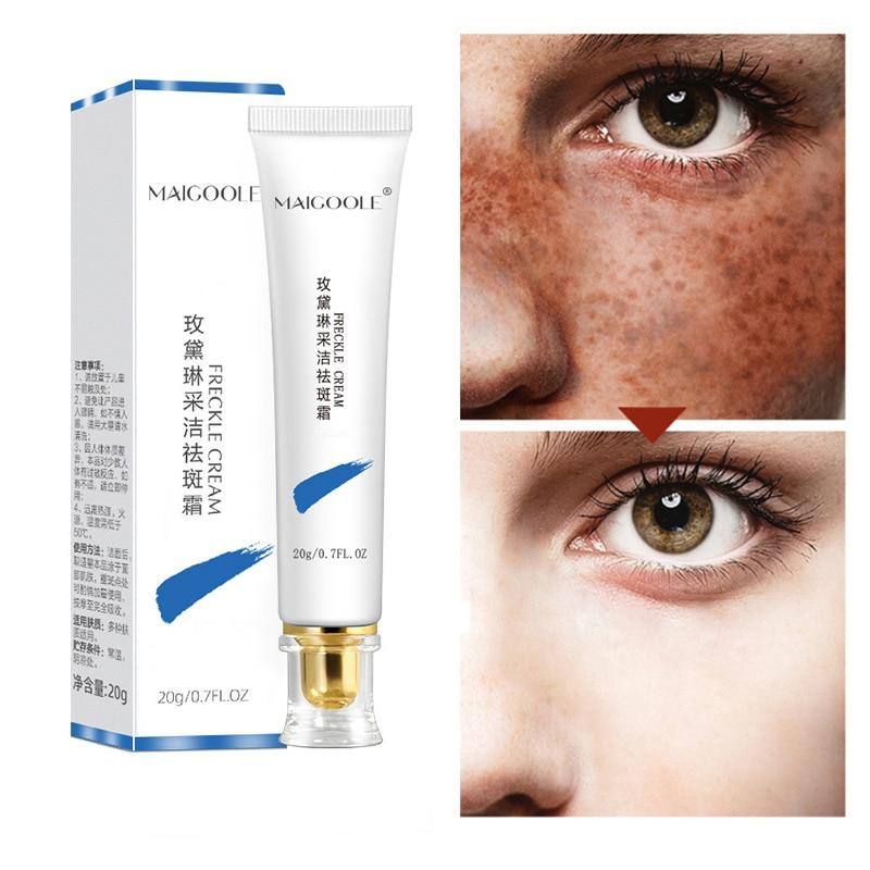 Powerful Whitening Freckle Cream Remove Melasma Acne Spot Pigment Melanin Dark Spots Pigmentation Moisturizing Gel Skin Care