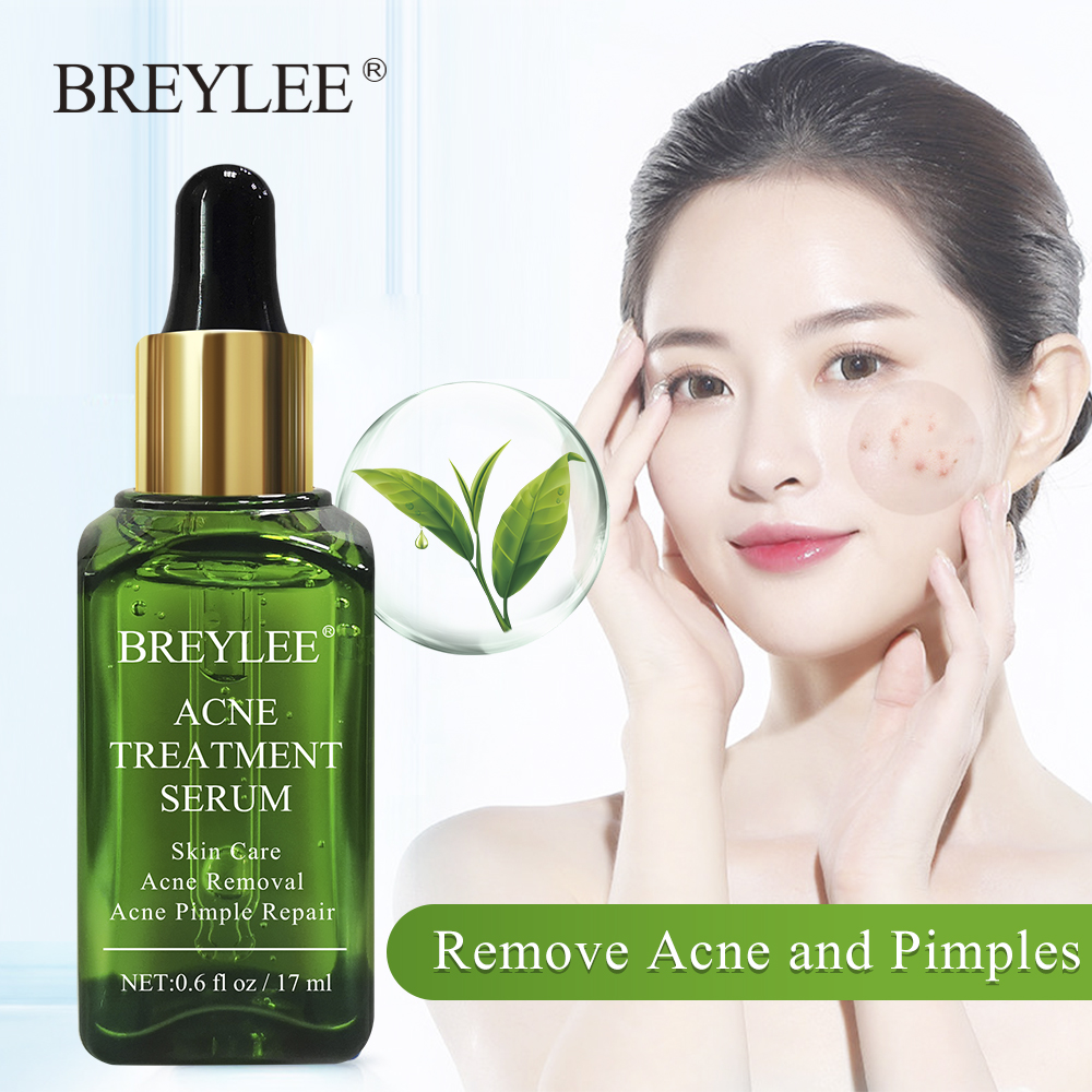 Breylee Acne Treatment Serum Face Facial Essence Anti Acne Scar