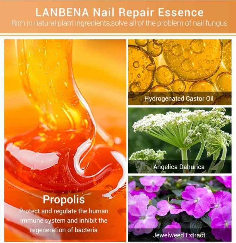 LANBENA פטרייתי נייל תיקון מהות סרום טיפול טיפול רגל פטרת הסרת ג 'ל אנטי Paronychia פטרת הציפורניים