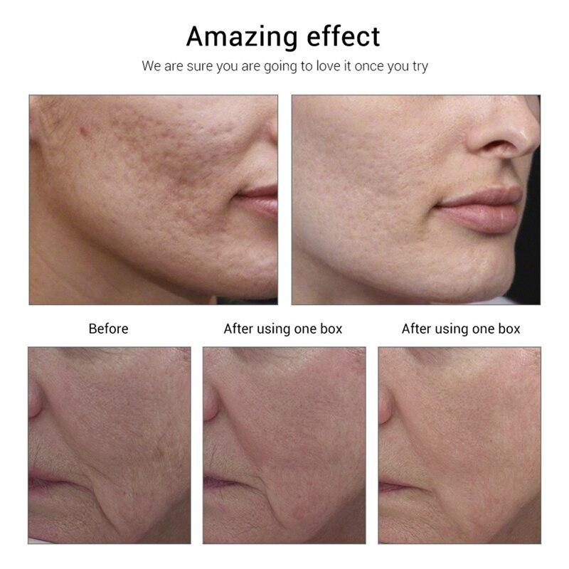 10/90pcs Vitamin E Capsules Whitening Skin Face Serum Anti-Wrinkle Anti-Aging Serum for Face Eye Treatment Moisturizing Skin