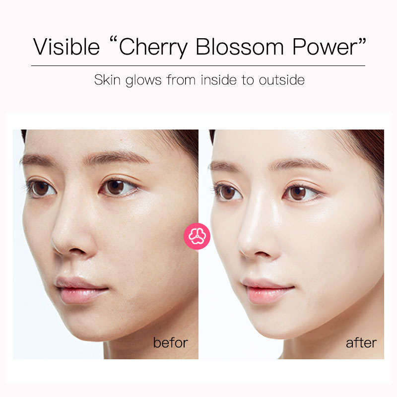 Image 5 - Fonce Korea Cherry Blossom Tender Color Set Hydrating, Moisturizing, Refreshing And Brightening Skin Repair Essence Lotion-in Serum from Beauty & Health