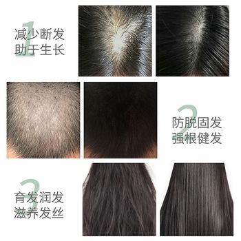 Wzrost włosów płynny masaż kulkowy promujący penetrację esencji szybki wzrost włosów dla mężczyzn i kobiet zapobiegający upuszczaniu wzrostu włosów tanie i dobre opinie SAKSRAAR Jedna jednostka Olejek eteryczny CN (pochodzenie) Pure natural Hair Growth Liquid Ball