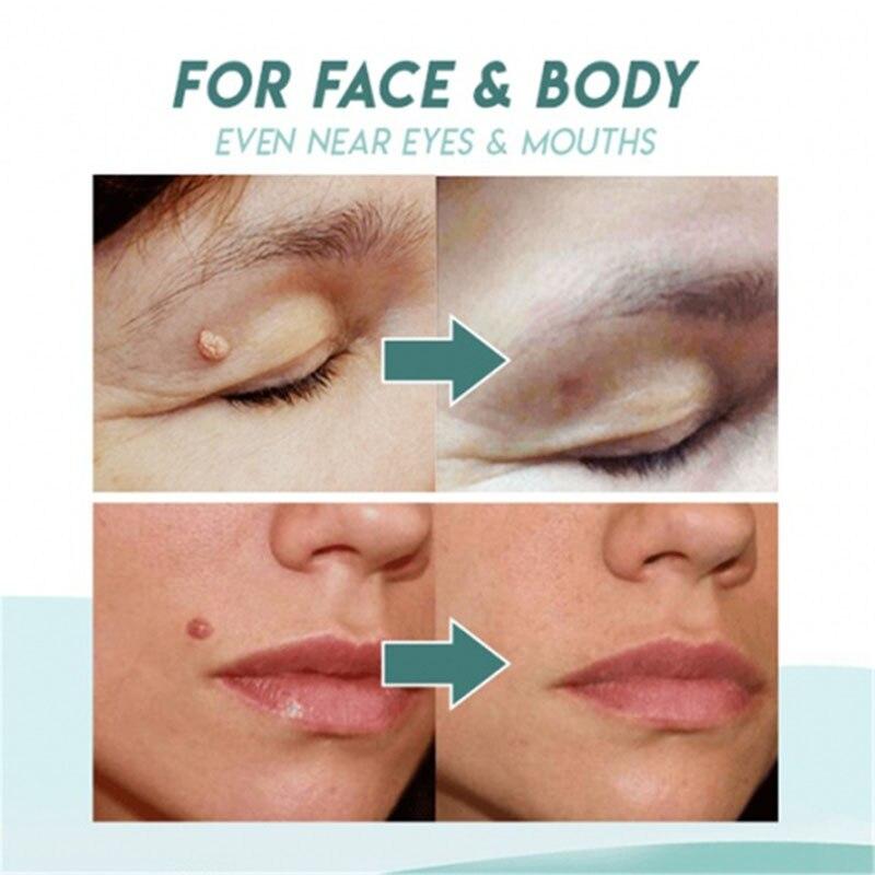 Mole & Genital Wart Skin Remover  6