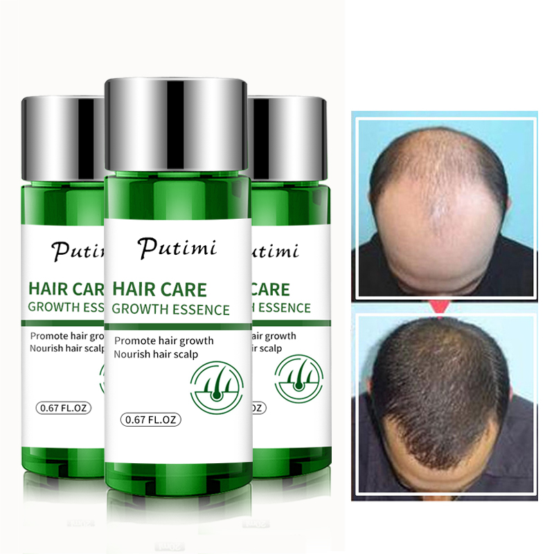 Putimi Fast Powerful Hair Growth Essence Hair Loss Products Essence Treatment Preventing Hair Loss Hairs Care For Women Men 20ml