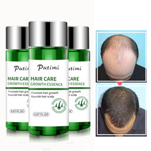Putimi Schnelle Leistungsstarke Haar Wachstum Essenz Haarausfall Produkte Essenz Behandlung Gegen Haarausfall Haare Pflege für Frauen Männer 20ml
