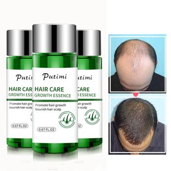 Putimi Fast potężna esencja na długie rzęsy utrata włosów produkty Essence leczenie zapobieganie utrata włosów pielęgnacja włosów dla kobiet mężczyzn 20ml tanie i dobre opinie 20180911 1Pcs Hair Growth Essence plant extract Preventing Hair Loss Health Care For Women Men (Adult Only)