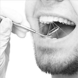 Espejo Dental dentista herramienta de eliminación de acero inoxidable gancho Tandsteen Limpieza de dientes inspección de limpieza de higiene Schraper Tartar