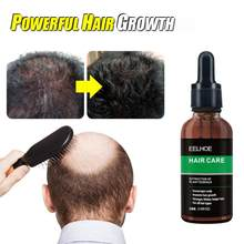 10/20/30/50ml poderoso tratamento da perda de cabelo gengibre cuidados com o cabelo crescimento óleo anti perda de cabelo seco danificado reparação cuidados com o cabelo tslm2