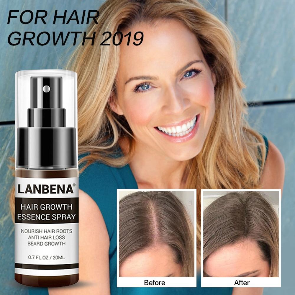 Fast Hair Growth Products Hair Spray Essence Oil Anti Hair Fall Loss Treatment Women & Men Grow Hair Alopecia Baldness 20ml